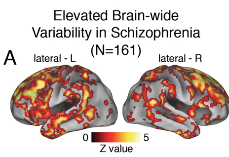 Colored areas highlight significant variations in activity of brains in people with schizophrenia not engaged in tasks when compared to control subjects.